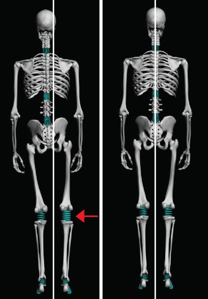 analyse fil à plomb osteopathe
